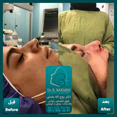 قبل و بعد از عمل بینی دکتر بخشی