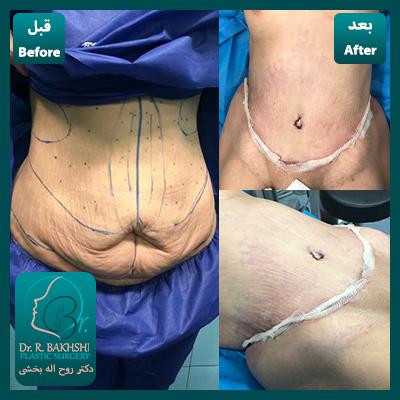 عکس قبل و بعد از عمل شکم و پهلو
