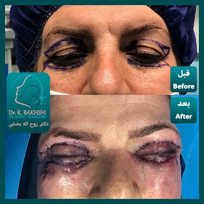 عکس عمل چشم و پلک   عمل بلفاروپلاستی 4پلک