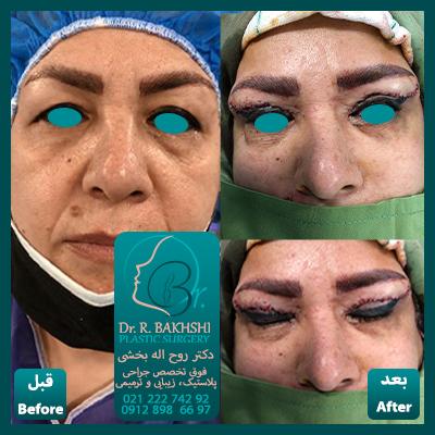نمونه عمل چشم و پلک دکتر بخشی