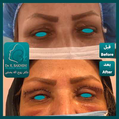 جراحی زیبایی لیفت پلک دکتر بخشی