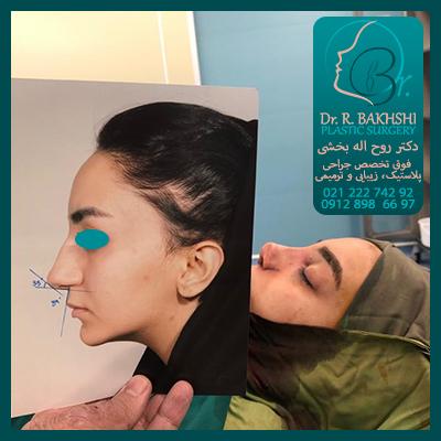 جراحی بینی دکتر بخشی