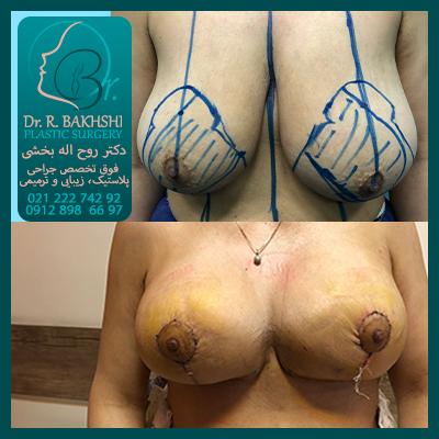 عمل سینه و پروتز سینه دکتر بخشی