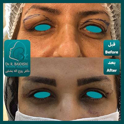 لیفت صورت و عمل چشم و پلک دکتر بخشی