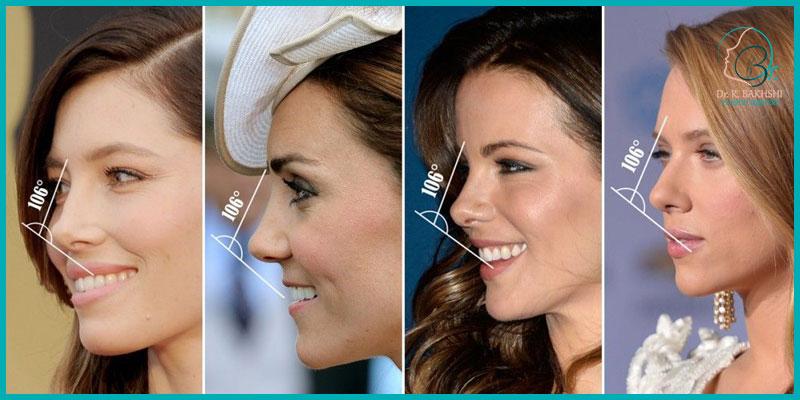 جراحی زیبایی بینی دکتر بخشی